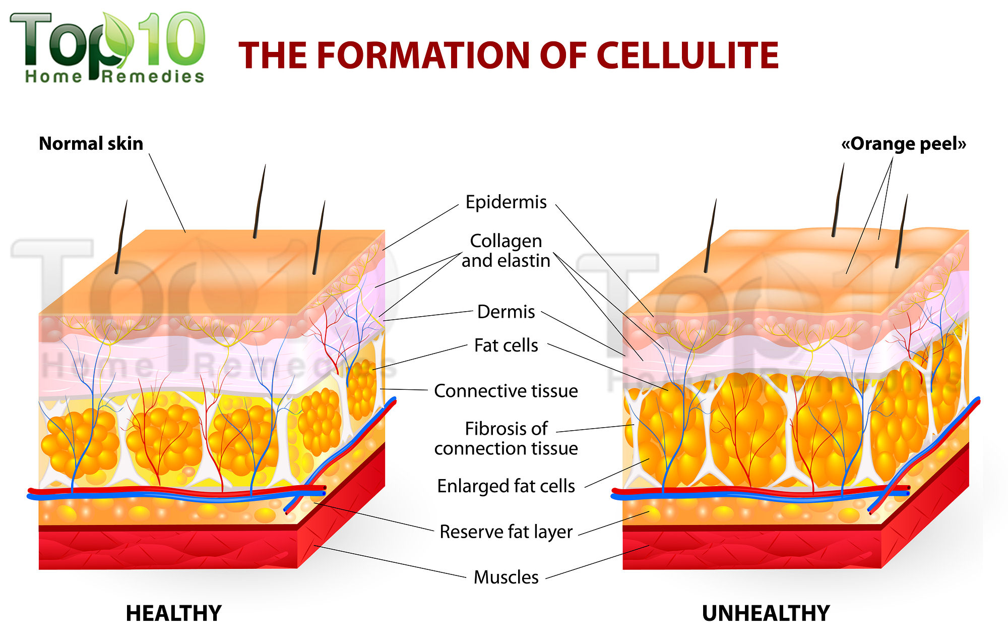 How to get rid of cellulite in thighs sdarc wellness center how to get rid of cellulite in thighs sdarc wellness center chiropractic care sports therapy services mission valley ca pooptronica Images
